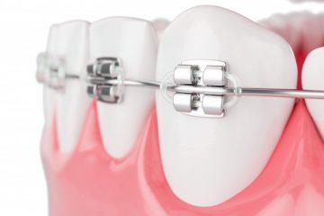 Fiksni zobni aparat 2